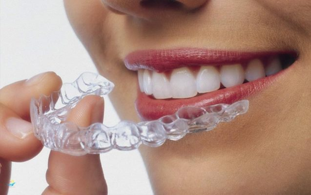 Khi niềng răng Invisalign, bạn có thể tháo khay bất cứ khi nào bạn muốn