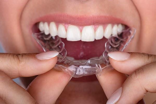 Niềng răng trong suốt Invisalign đem lại tính thẩm mỹ cao
