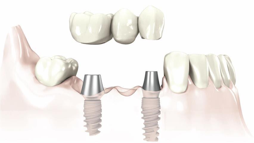 Trồng răng Implant giúp hạn chế tiêu xương hàm