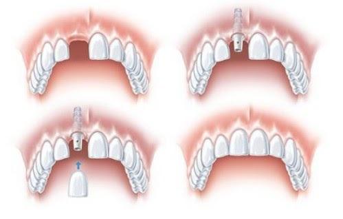 Cấy răng Implant tức thì cần được hỗ trợ bởi máy móc hiện đại để đạt hiệu quả cao nhất