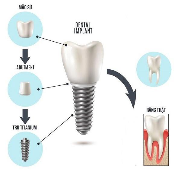 Cấu trúc của một răng Implant.