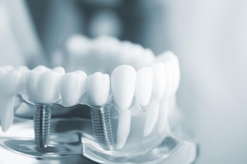 Bác sĩ có thể thực hiện một hoặc nhiều trụ Implant tùy thuộc vào tình trạng mất răng của bạn
