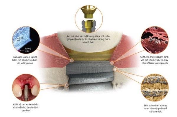 Công nghệ implant - IMPLANT BIOHORIZONS