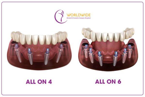 Cấy ghép Implant All-on-4 và All-on-6 là giải pháp hiệu quả cho người mất răng toàn hàm.