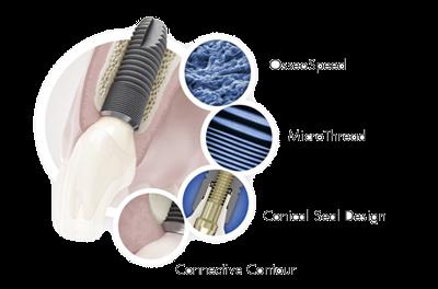 công nghệ implant - IMPLANT DENSPLY SIRONA