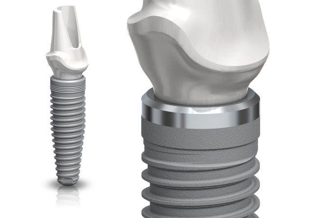 công nghệ implant -  Nobel Replace Conical Connection 2