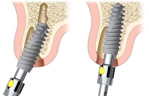 công nghệ Implant tức thì