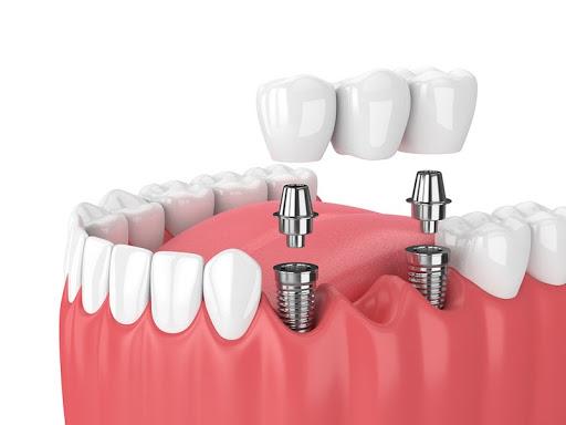 Cận cảnh quy trình đặt Implant