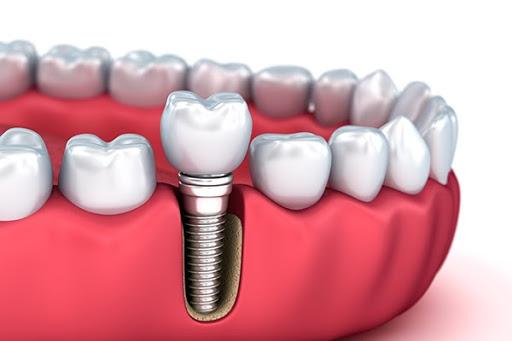 Cấy răng Implant là giải pháp hiệu quả thay thế răng đã mất