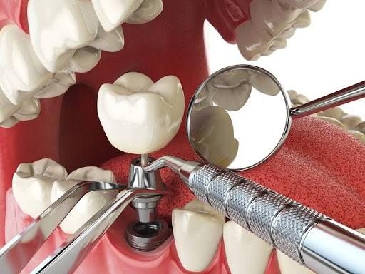 Quy trình trồng răng Implant diễn ra nhẹ nhàng hơn bạn tưởng tượng