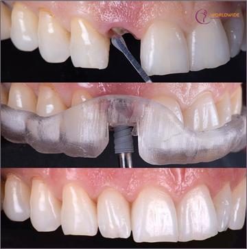 Hoàn toàn có thể nhổ và cấy răng Implant tức thì trong một lần hẹn