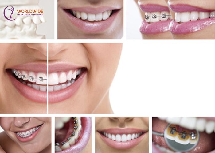 bảng giá dịch vụ niềng răng