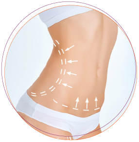 Ultrasonic Liposuction