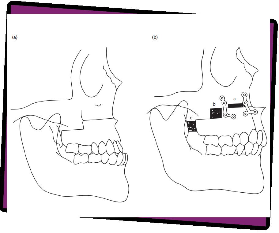 Phẫu thuật chỉnh móm có 2 phương pháp