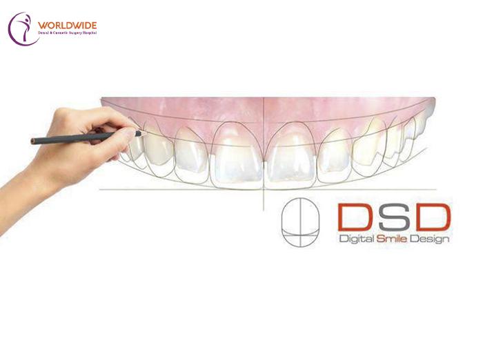 implant procedure