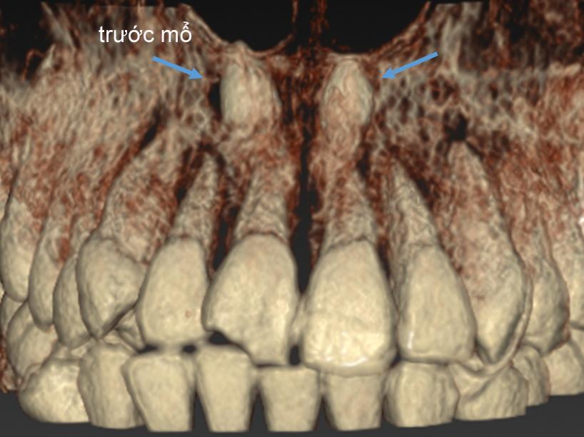 răng mọc ngược