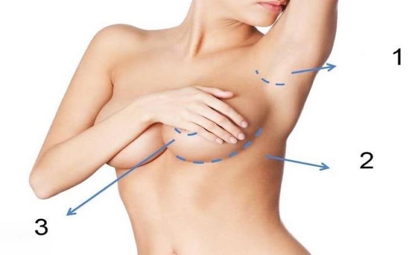 Địa chỉ uy tín phẫu thuật ngực nội soi an toàn?