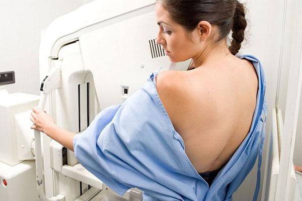 Kiểm tra tổng quát trước khi nâng ngực