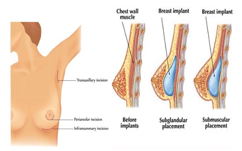Phẫu thuật ngực nội soi là gì?