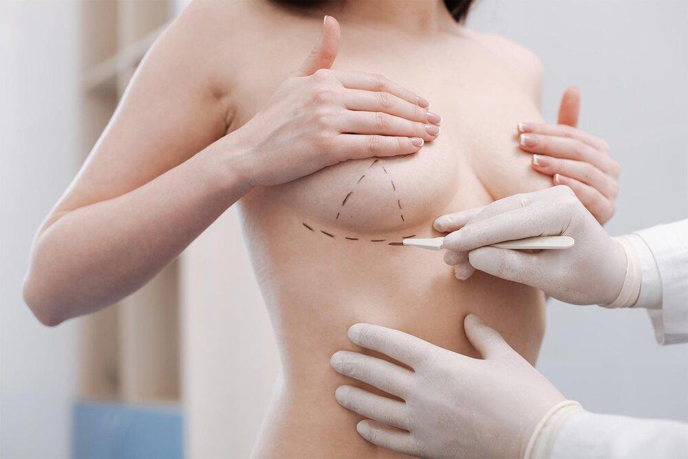 Phẫu thuật thu nhỏ ngực giúp chị em có thân hình cân đối