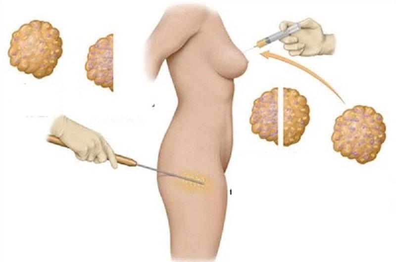 Dịch vụ nâng ngực không cần phẫu thuật tại Bệnh viện WorldWide