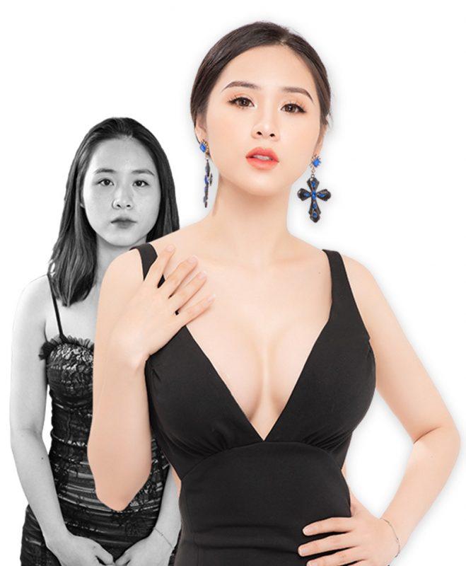 Nâng ngực giúp chị em tự tin hơn trong cuộc sống