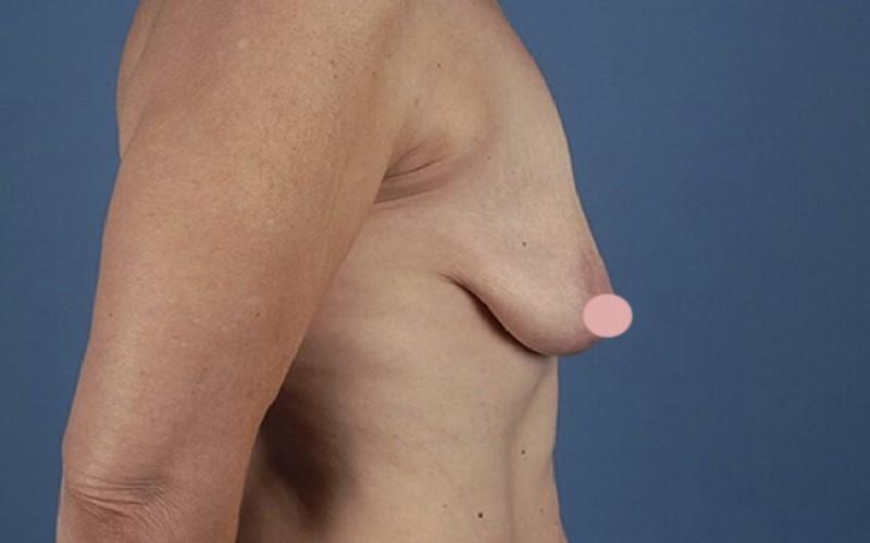 Ngực xệ, lép cần nâng ngực nội soi