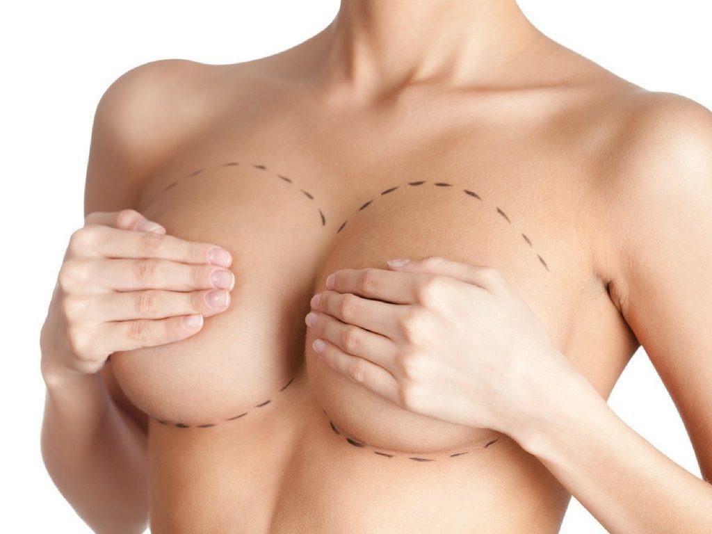 Phương pháp nâng ngực chảy xệ sau sinh