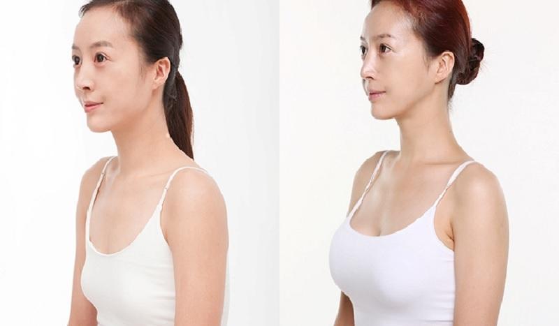 Tại sao nên phẫu thuật thẩm mỹ ngực