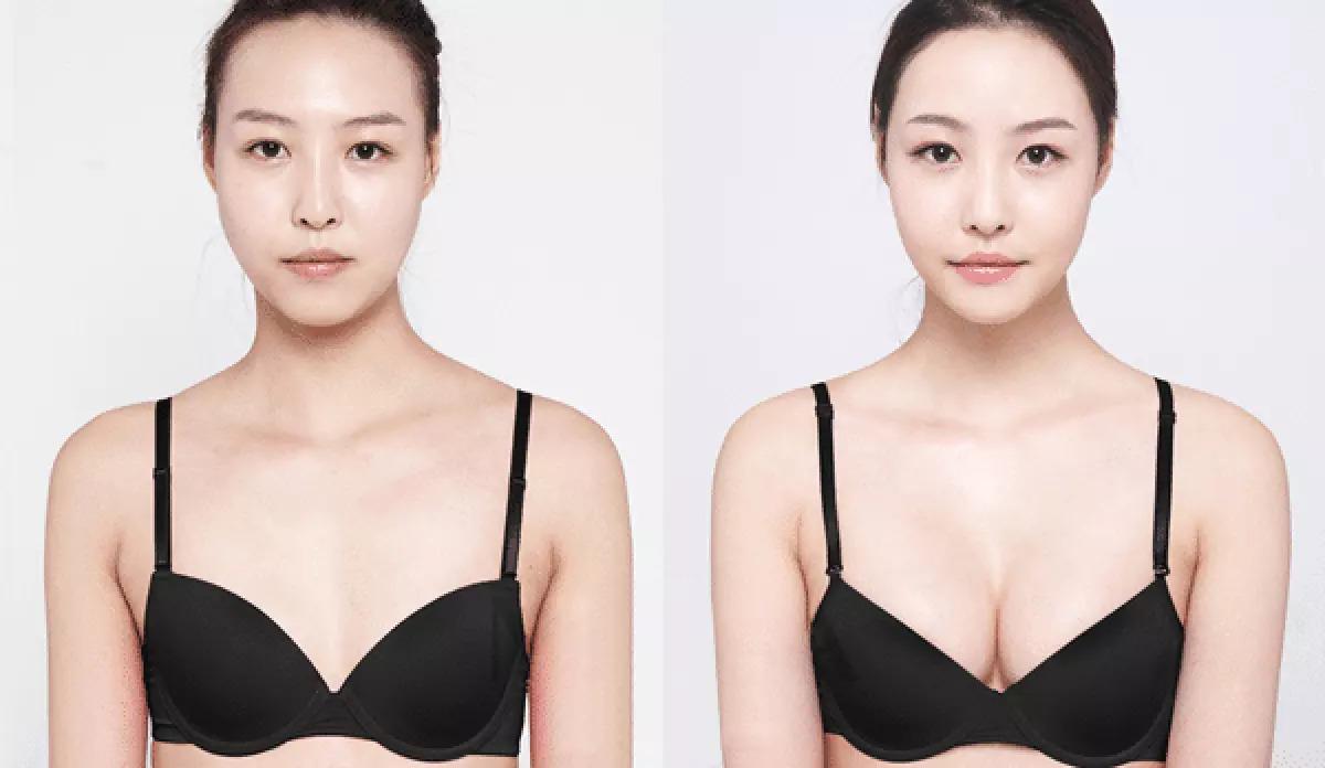 Ưu điểm của nâng ngực bằng mỡ tự thân