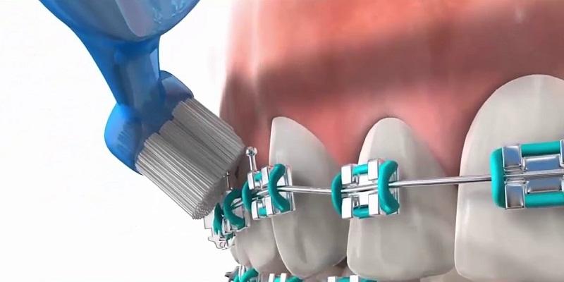 Bàn chải răng niềng