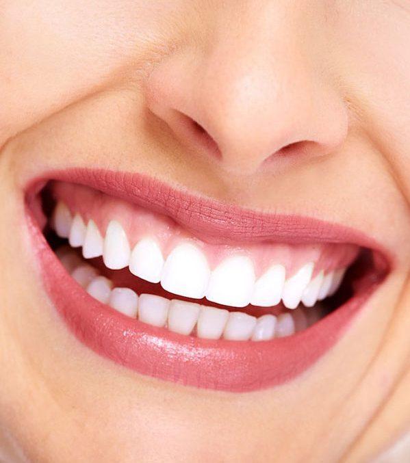 Điều trị cười hở nướu