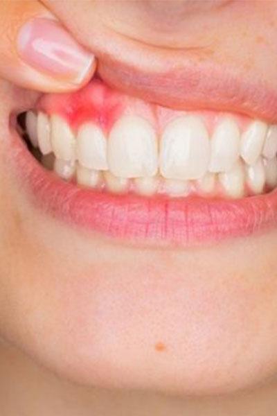 Răng cần phẫu thuật cắt chóp