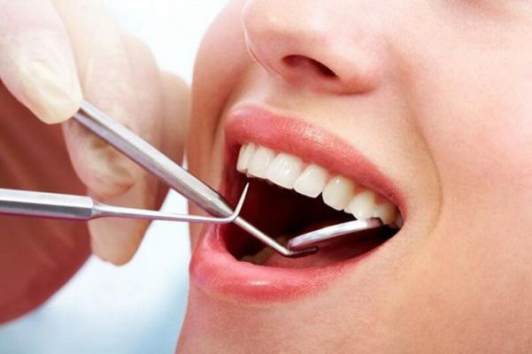 Cấu trúc răng khỏe mạnh