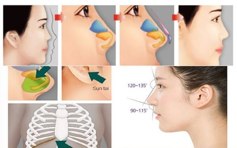 Nâng mũi bằng sụn tự thân