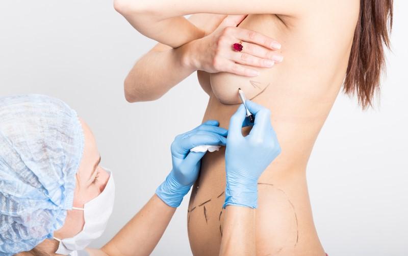 Nâng ngực bằng phương pháp cấy mỡ tự thân