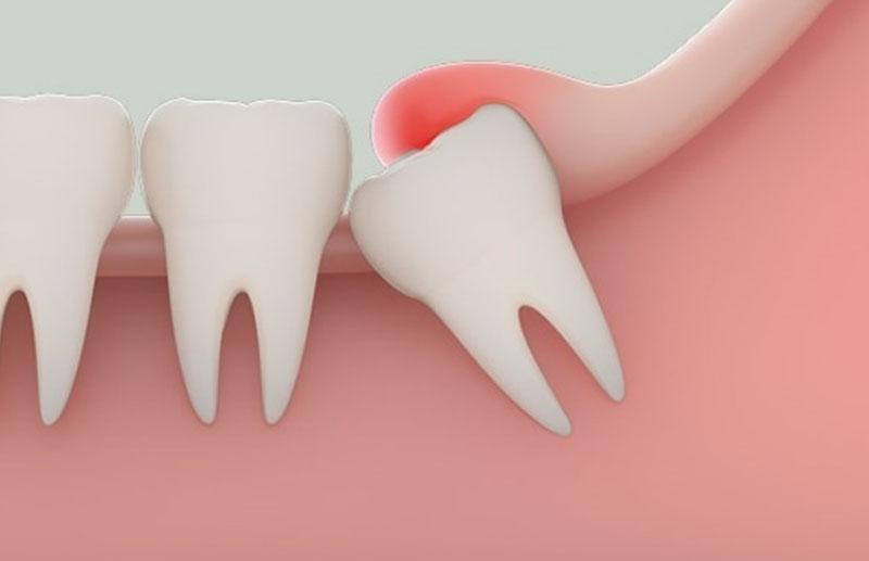 Răng khôn gây đau nhức