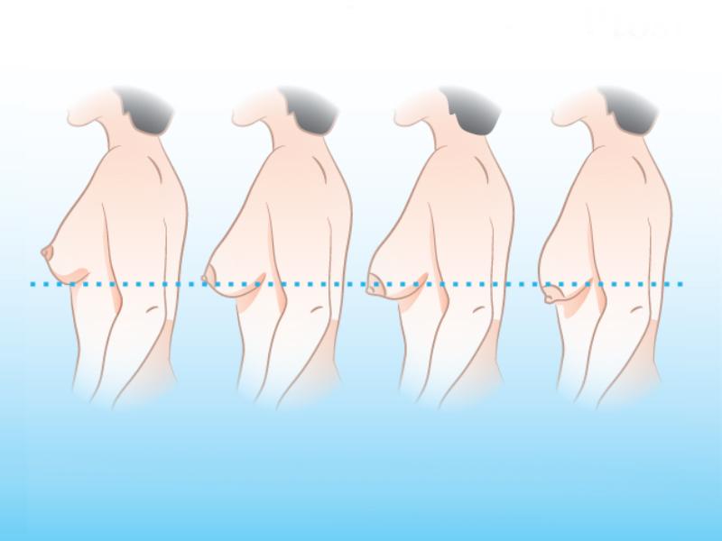 Nâng ngực chảy xệ giá bao nhiêu sẽ phụ thuộc phần lớn vào mức độ chảy xệ của ngực