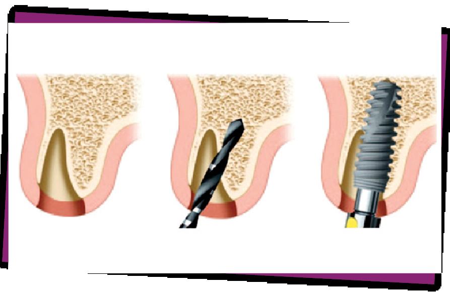 Implant tức thì