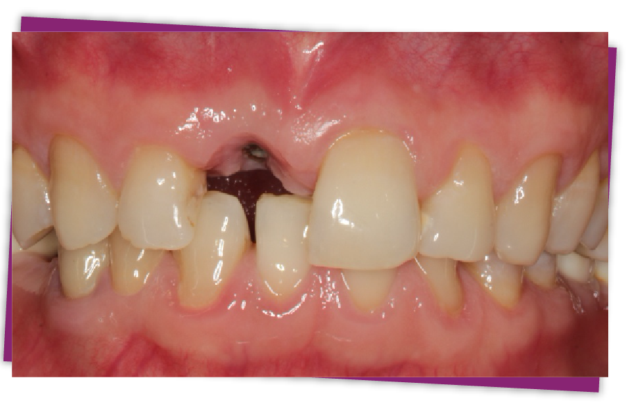 implant placement after teeth removal
